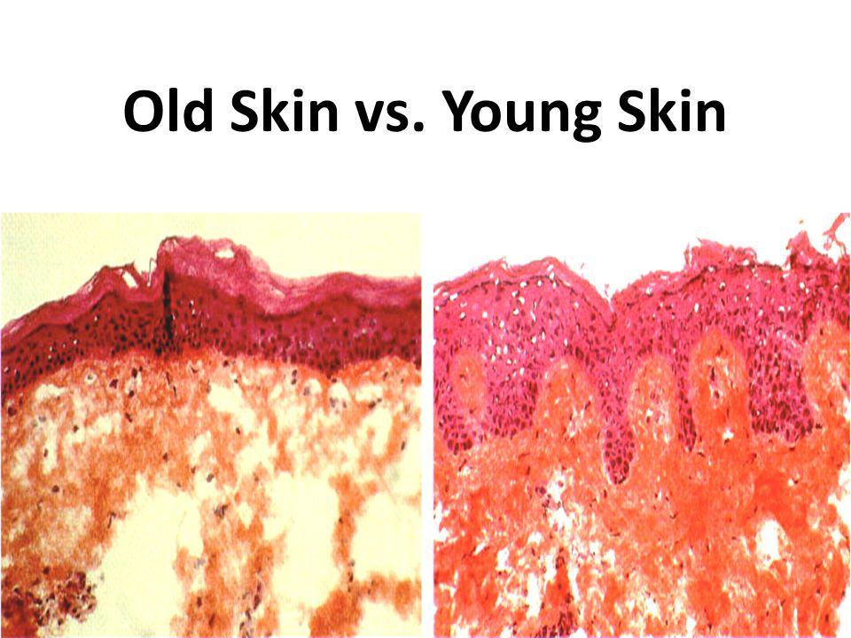 Old Skin vs. Young Skin