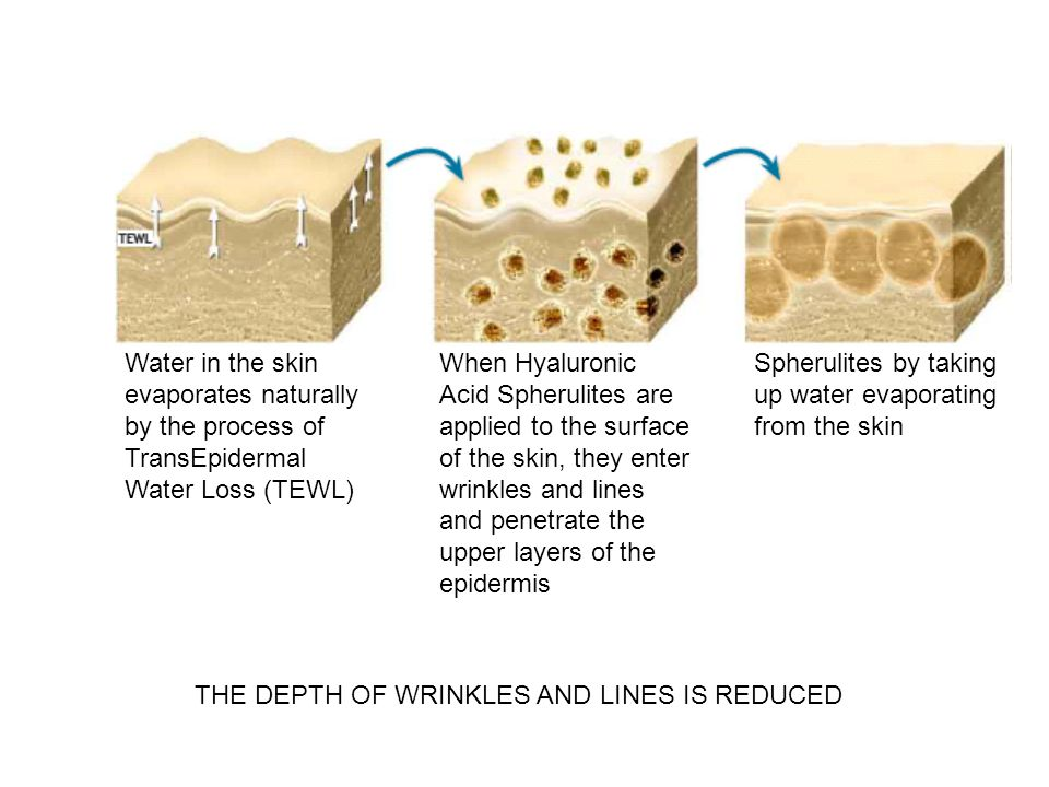 Water in the skin evaporates naturally by the process of TransEpidermal Water Loss (TEWL) When Hyaluronic Acid Spherulites are applied to the surface of the skin, they enter wrinkles and lines and penetrate the upper layers of the epidermis Spherulites by taking up water evaporating from the skin THE DEPTH OF WRINKLES AND LINES IS REDUCED