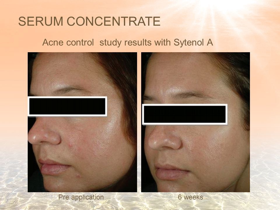 SERUM CONCENTRATE 6 weeks Pre application Acne control study results with Sytenol A