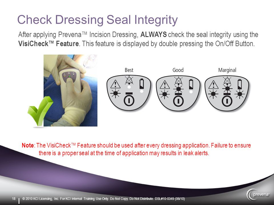 Check Dressing Seal Integrity After applying Prevena™ Incision Dressing, ALWAYS check the seal integrity using the VisiCheck™ Feature.
