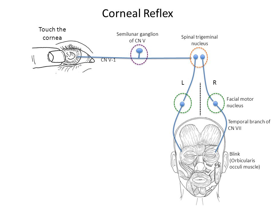 Corneal Reflex Semilunar ganglion of CN V CN V-1 LR Spinal trigeminal nucleus Touch the cornea Blink (Orbicularis occuli muscle) Facial motor nucleus Temporal branch of CN VII