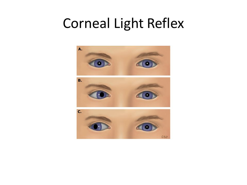 Corneal Light Reflex