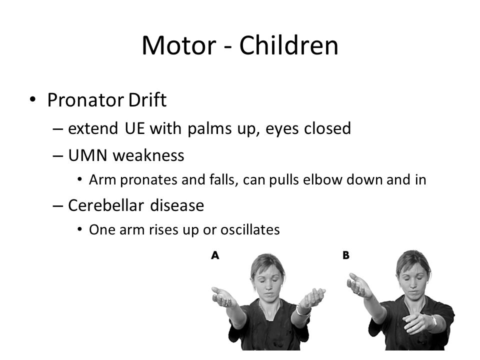 Motor - Children Pronator Drift – extend UE with palms up, eyes closed – UMN weakness Arm pronates and falls, can pulls elbow down and in – Cerebellar disease One arm rises up or oscillates