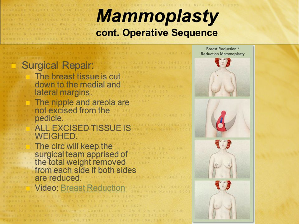 Mammoplasty cont. Operative Sequence Surgical Repair: The breast tissue is cut down to the medial and lateral margins. The nipple and areola are not e