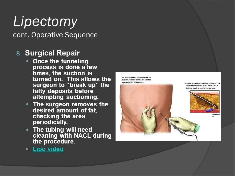 Lipectomy cont. Operative Sequence  Surgical Repair Once the tunneling process is done a few times, the suction is turned on. This allows the surgeon
