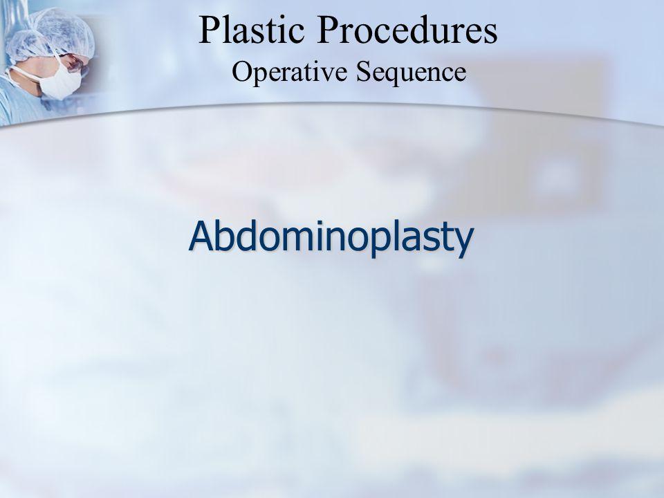 Abdominoplasty Plastic Procedures Operative Sequence