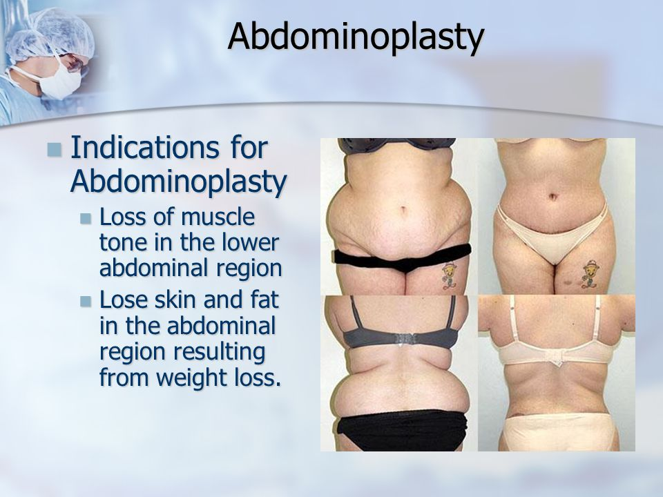 Abdominoplasty Indications for Abdominoplasty Indications for Abdominoplasty Loss of muscle tone in the lower abdominal region Loss of muscle tone in
