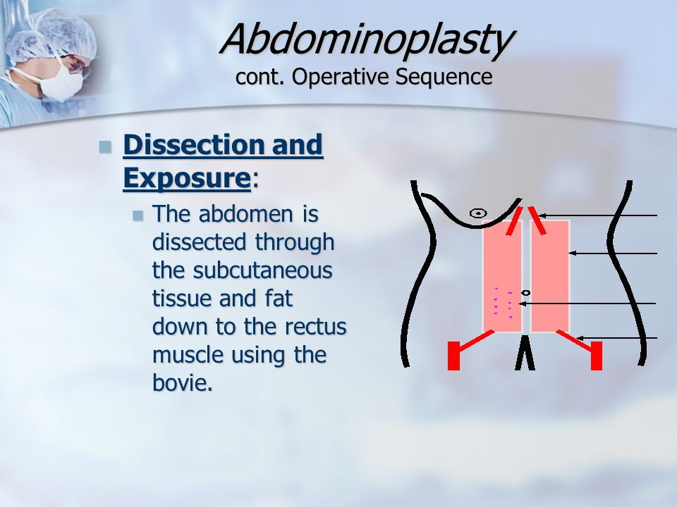Abdominoplasty cont. Operative Sequence Dissection and Exposure: Dissection and Exposure: The abdomen is dissected through the subcutaneous tissue and