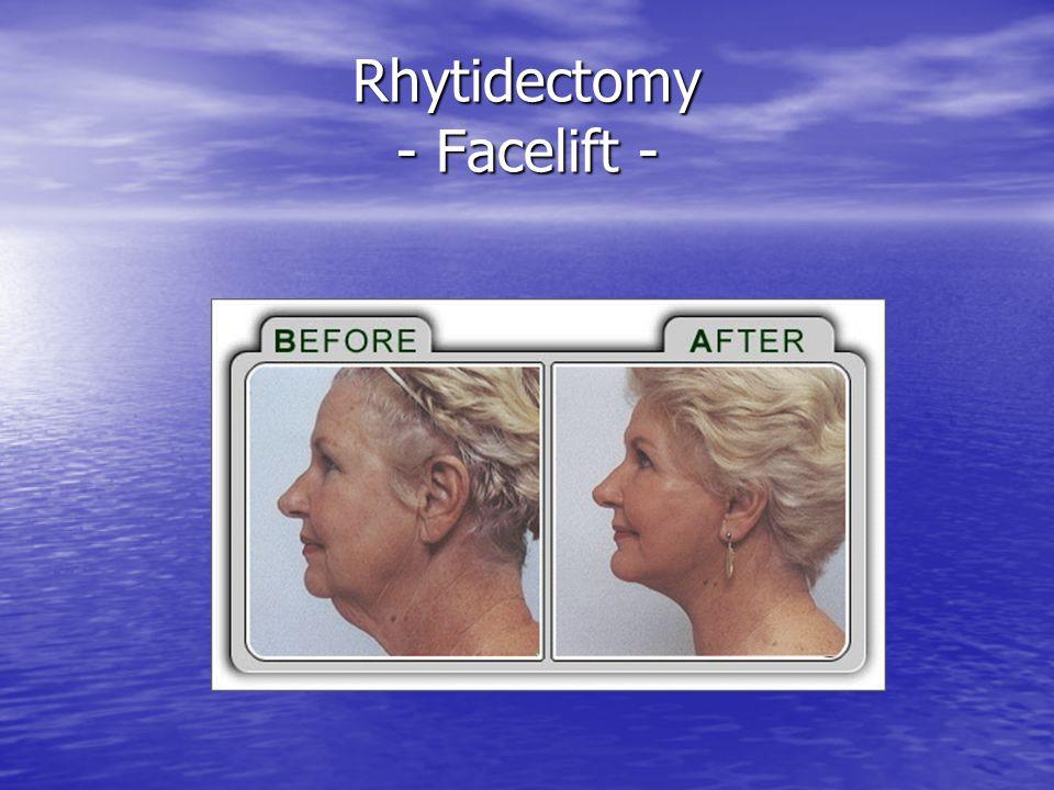 Rhytidectomy cont.