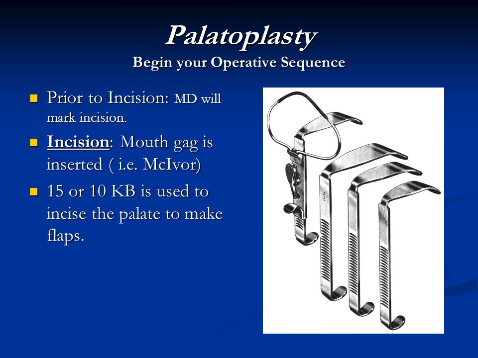 Palatoplasty Begin your Operative Sequence Prior to Incision: MD will mark incision. Prior to Incision: MD will mark incision. Incision: Mouth gag is