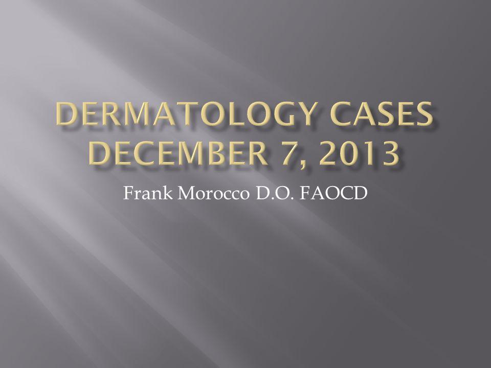 Frank Morocco D.O. FAOCD