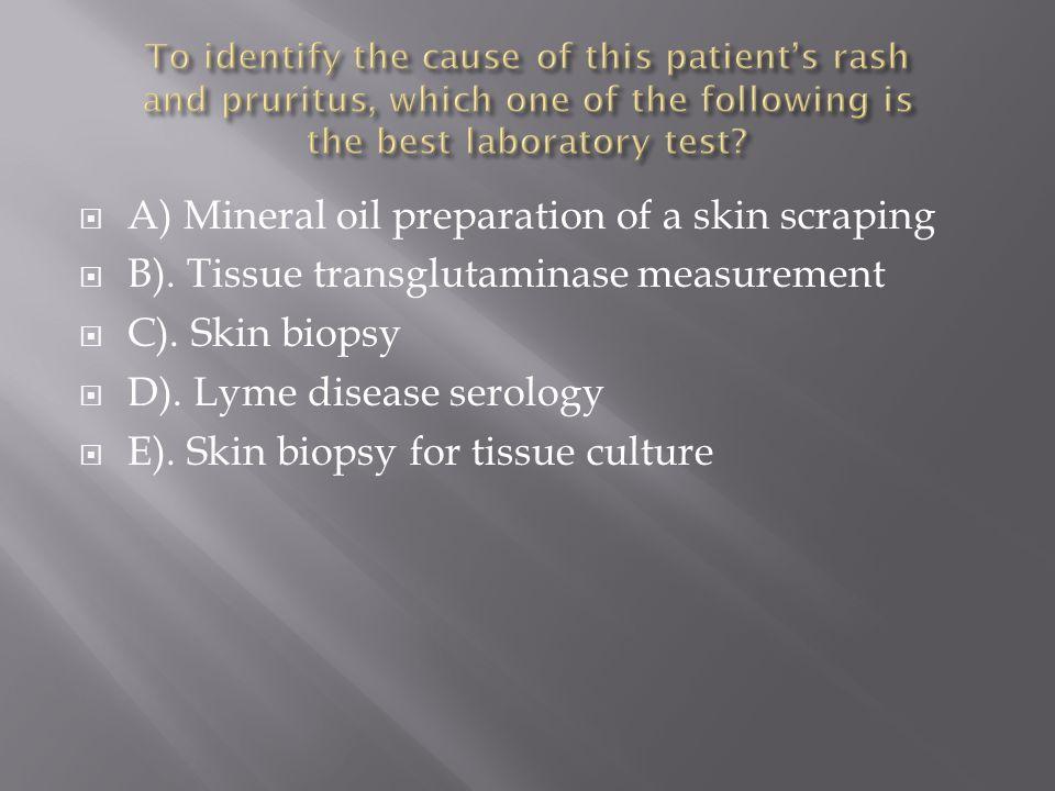  A) Mineral oil preparation of a skin scraping  B). Tissue transglutaminase measurement  C). Skin biopsy  D). Lyme disease serology  E). Skin bio