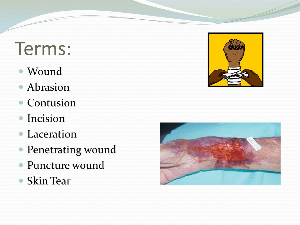 Types of wounds: Intentional Open Closed Clean Clean-contaminated Contaminated Infected/dirty Chronic Partial thickness Full thickness