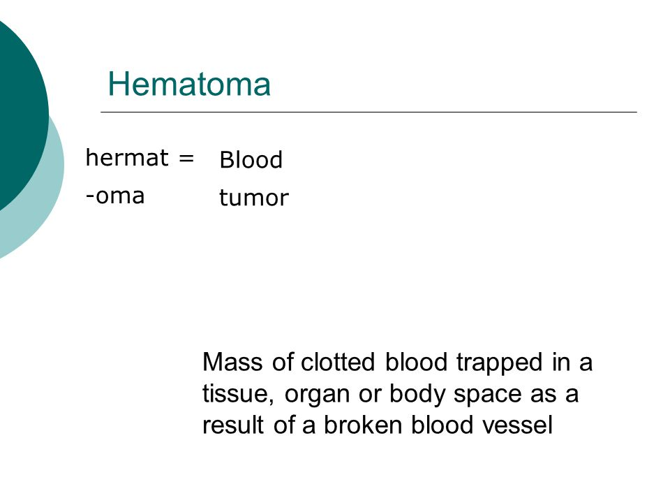 Hematoma hermat = -oma Blood tumor Mass of clotted blood trapped in a tissue, organ or body space as a result of a broken blood vessel