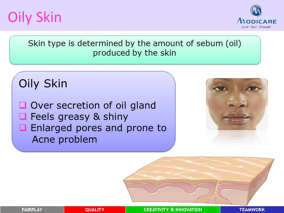 FAIRPLAYQUALITYCREATIVITY & INNOVATIONTEAMWORK Oily Skin Skin type is determined by the amount of sebum (oil) produced by the skin Oily Skin  Over se