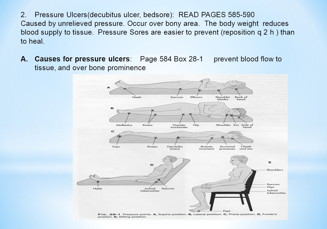 2.Pressure Ulcers(decubitus ulcer, bedsore): READ PAGES 585-590 Caused by unrelieved pressure.
