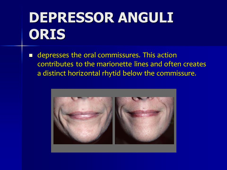 DEPRESSOR ANGULI ORIS depresses the oral commissures. This action contributes to the marionette lines and often creates a distinct horizontal rhytid b