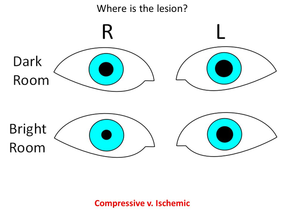 Compressive v. Ischemic Where is the lesion?
