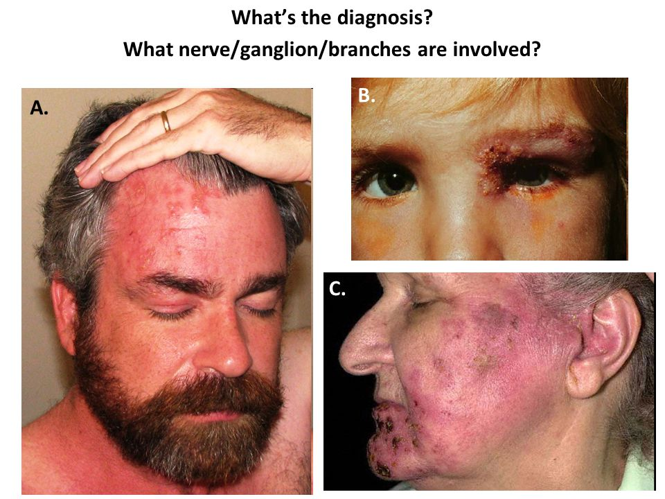 What's the diagnosis? What nerve/ganglion/branches are involved? A. B. C.