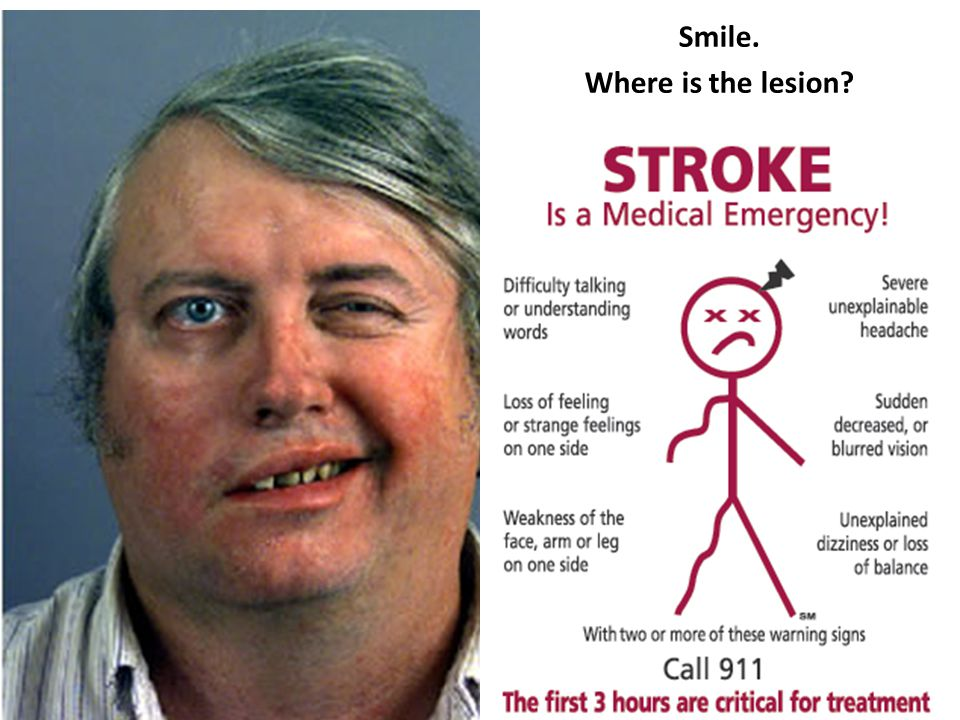 Smile. Where is the lesion?