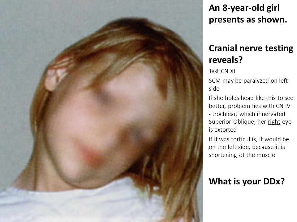 An 8-year-old girl presents as shown. Cranial nerve testing reveals.