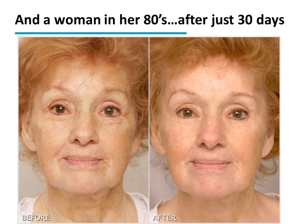 And a woman in her 80's…after just 30 days