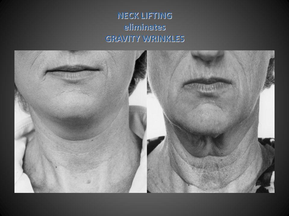 NECK LIFTING eliminates GRAVITY WRINKLES
