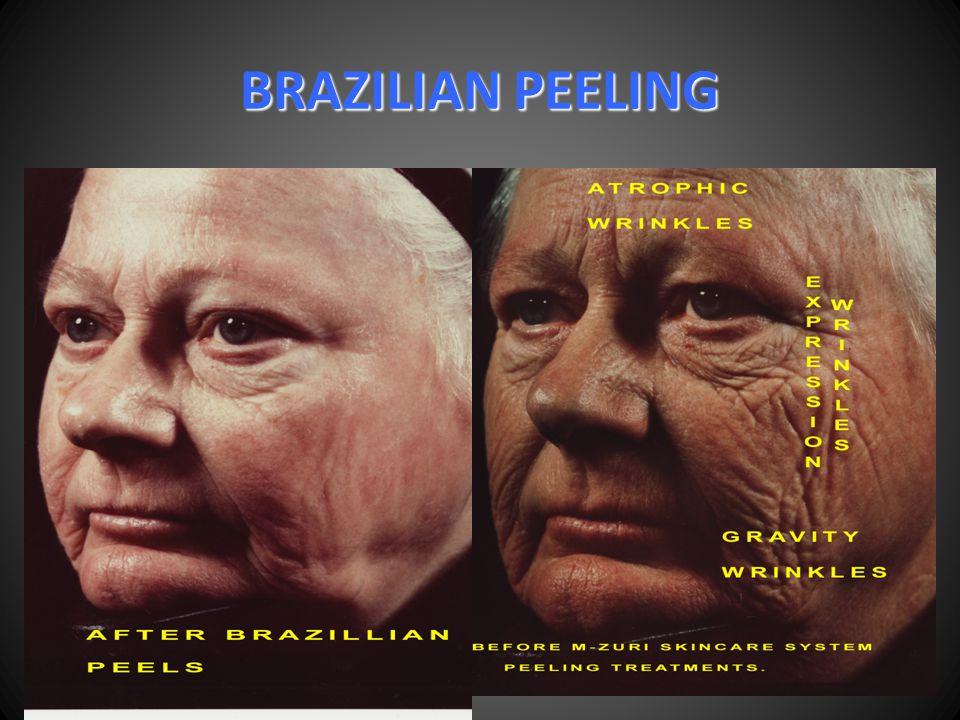 BRAZILIAN PEELING
