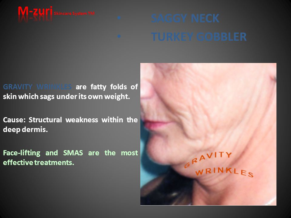 TURKEY GOBBLER EXPRESSION WRINKLES are permanent furrows produced by repeated contraction of facial muscles ( Frown and glabellar lines & Crow's feet ).