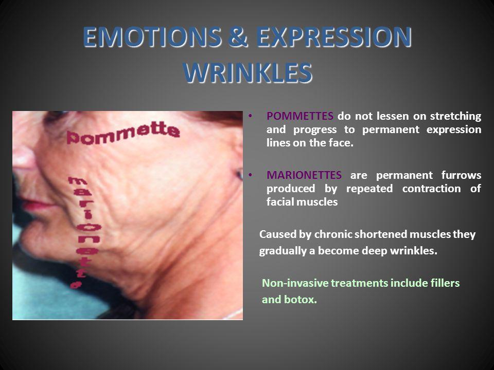 Neck Lifting Neck Lifting Eliminates gravity wrinkles & reduces expression wrinkles