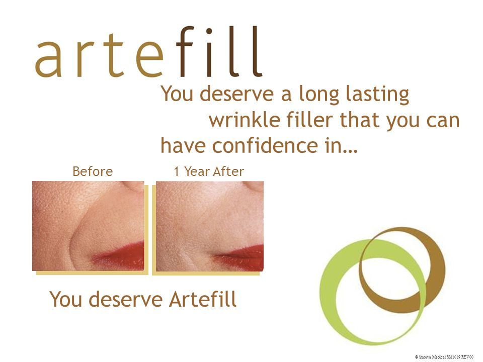 © Suneva Medical SM1019 REV00 You deserve Artefill You deserve a long lasting wrinkle filler that you can have confidence in… Before1 Year After