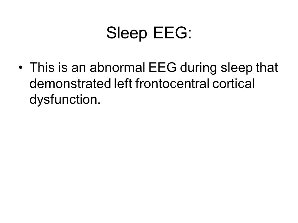 Sleep EEG: This is an abnormal EEG during sleep that demonstrated left frontocentral cortical dysfunction.
