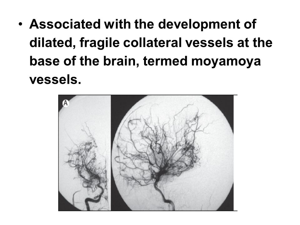 Associated with the development of dilated, fragile collateral vessels at the base of the brain, termed moyamoya vessels.