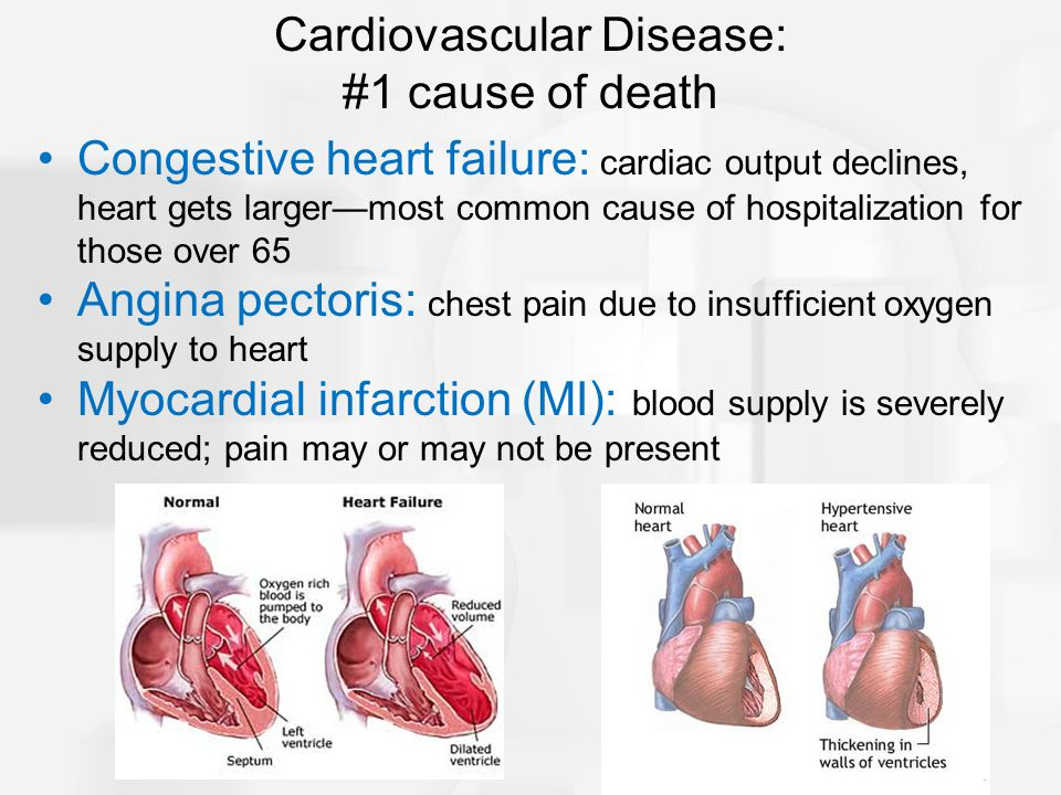 Congestive heart failure: cardiac output declines, heart gets larger—most common cause of hospitalization for those over 65 Angina pectoris: chest pain due to insufficient oxygen supply to heart Myocardial infarction (MI): blood supply is severely reduced; pain may or may not be present Cardiovascular Disease: #1 cause of death