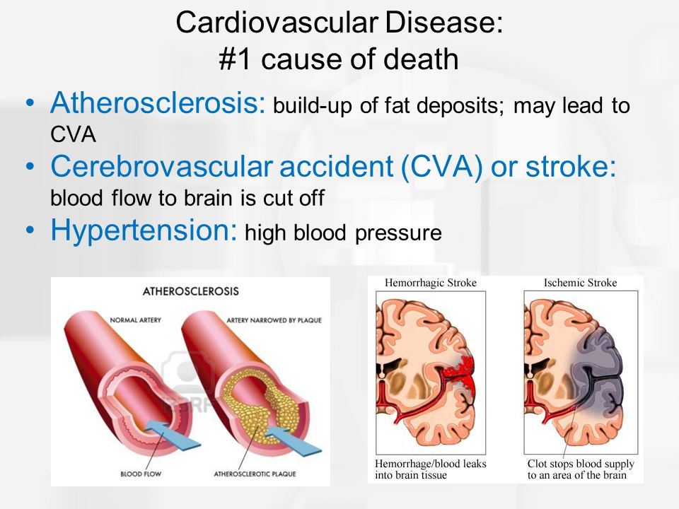 Atherosclerosis: build-up of fat deposits; may lead to CVA Cerebrovascular accident (CVA) or stroke: blood flow to brain is cut off Hypertension: high blood pressure Cardiovascular Disease: #1 cause of death