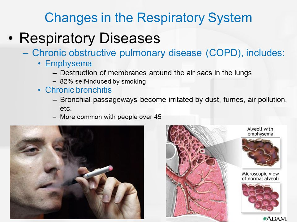 Respiratory Diseases –Chronic obstructive pulmonary disease (COPD), includes: Emphysema –Destruction of membranes around the air sacs in the lungs –82