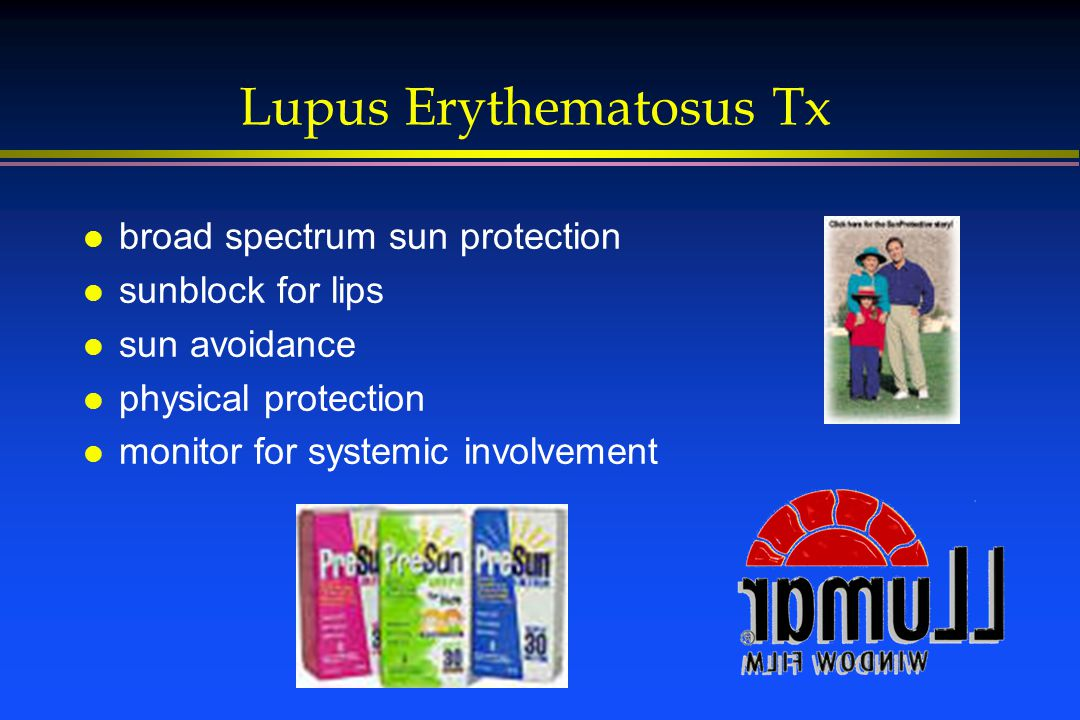 Lupus Erythematosus Tx l broad spectrum sun protection l sunblock for lips l sun avoidance l physical protection l monitor for systemic involvement