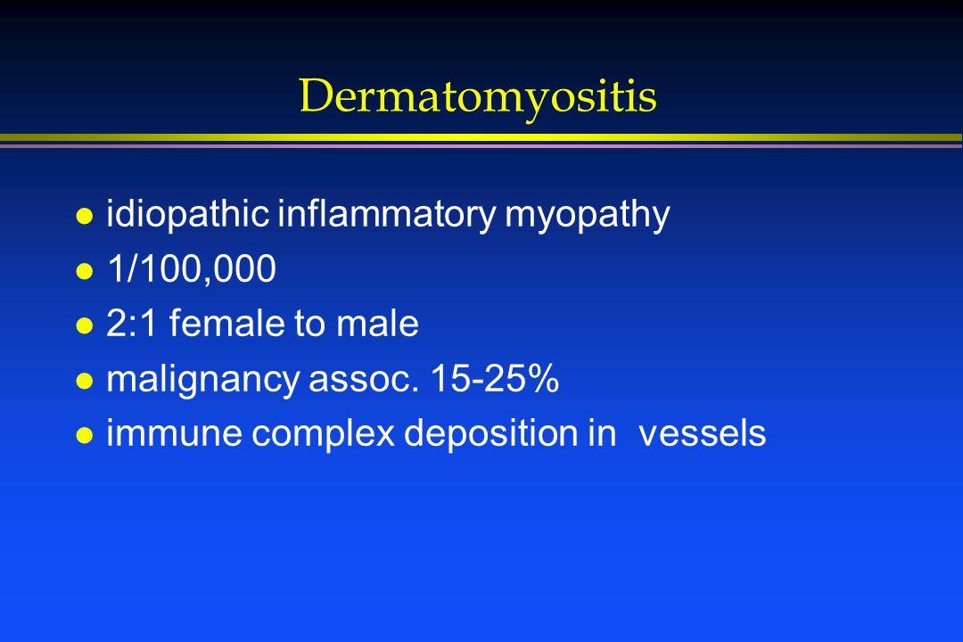 Dermatomyositis l idiopathic inflammatory myopathy l 1/100,000 l 2:1 female to male l malignancy assoc. 15-25% l immune complex deposition in vessels