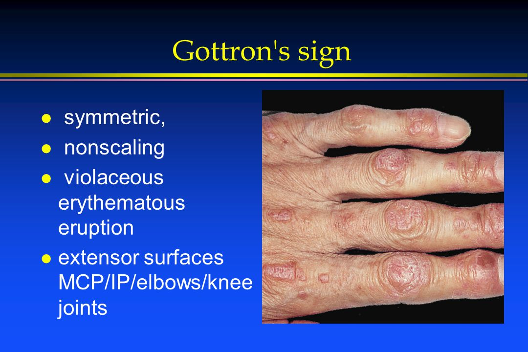 Gottron s sign l symmetric, l nonscaling l violaceous erythematous eruption l extensor surfaces MCP/IP/elbows/knee joints
