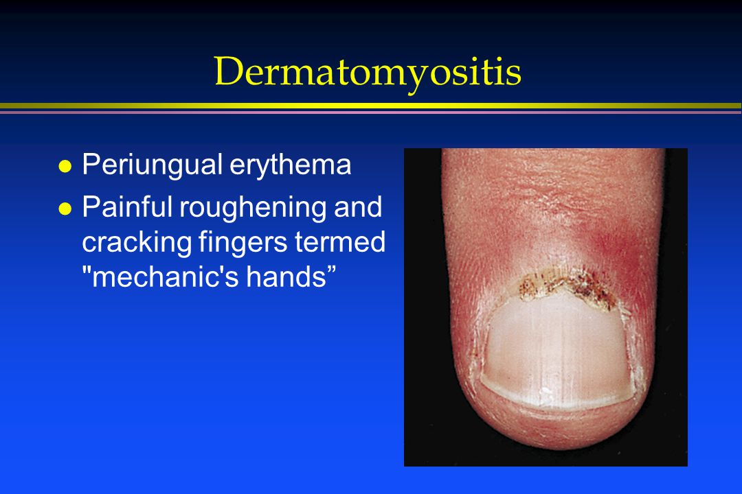 Dermatomyositis l Periungual erythema l Painful roughening and cracking fingers termed mechanic s hands