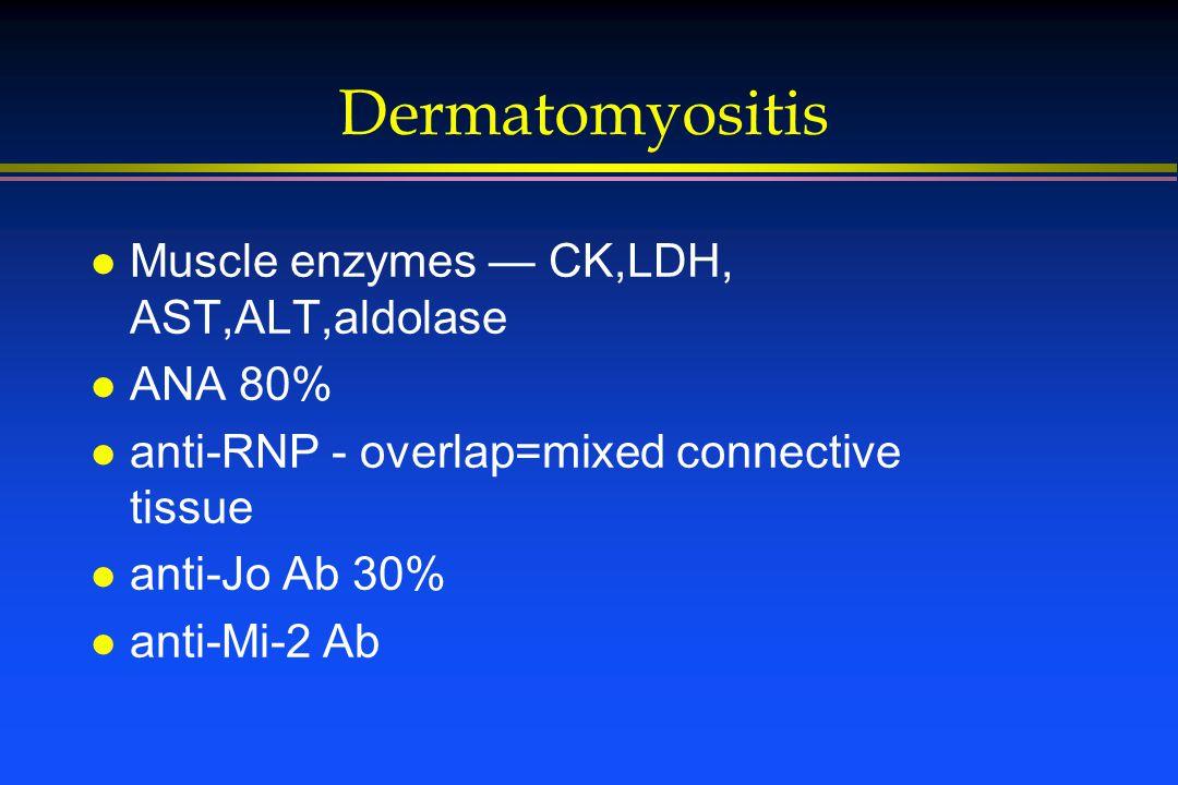 Dermatomyositis l Muscle enzymes — CK,LDH, AST,ALT,aldolase l ANA 80% l anti-RNP - overlap=mixed connective tissue l anti-Jo Ab 30% l anti-Mi-2 Ab