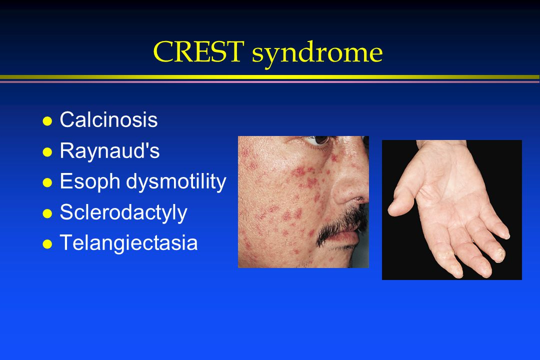 CREST syndrome l Calcinosis l Raynaud's l Esoph dysmotility l Sclerodactyly l Telangiectasia