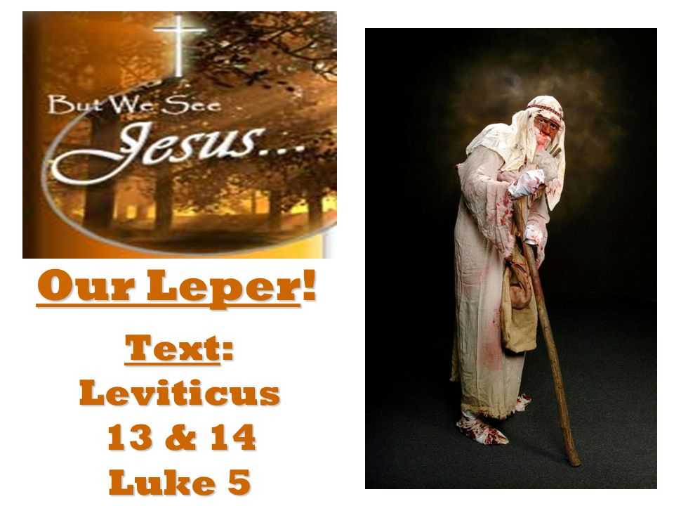 Text: Leviticus 13 & 14 Luke 5 Our Leper!