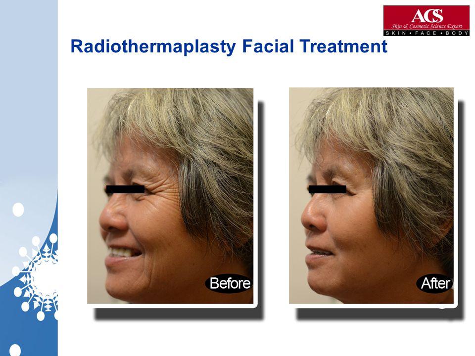 Radiothermaplasty Facial Treatment