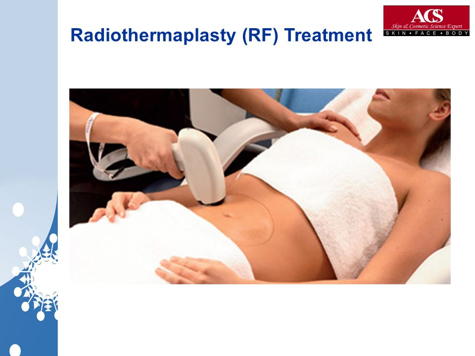 Radiothermaplasty (RF) Treatment