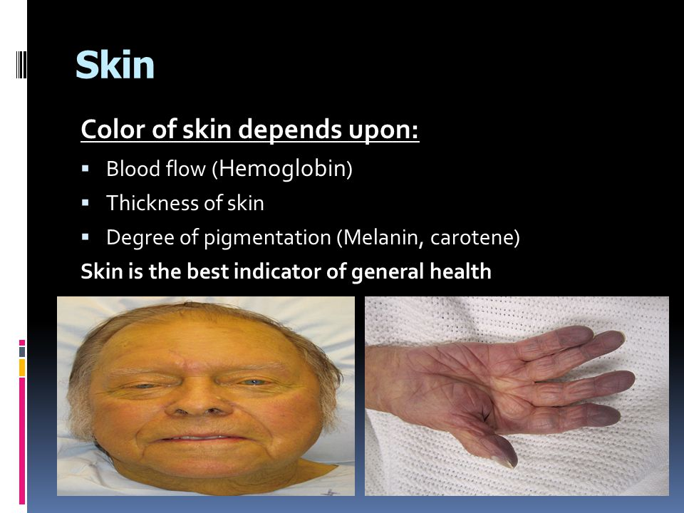 Tension lines/Cleavage lines/Langer lines  The tension lines of skin forms due to the patterns of arrangement of collagen fibers in the dermis.
