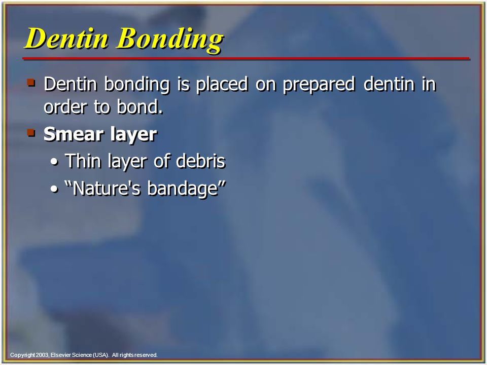 Copyright 2003, Elsevier Science (USA). All rights reserved.  Dentin bonding is placed on prepared dentin in order to bond.  Smear layer Thin layer