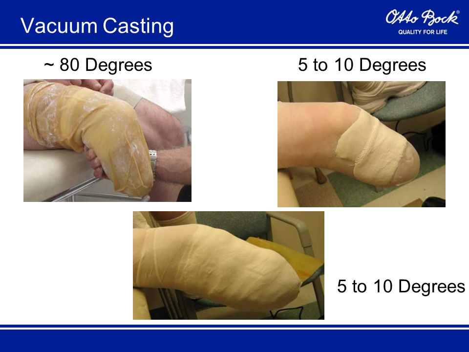 ~ 80 Degrees5 to 10 Degrees Vacuum Casting