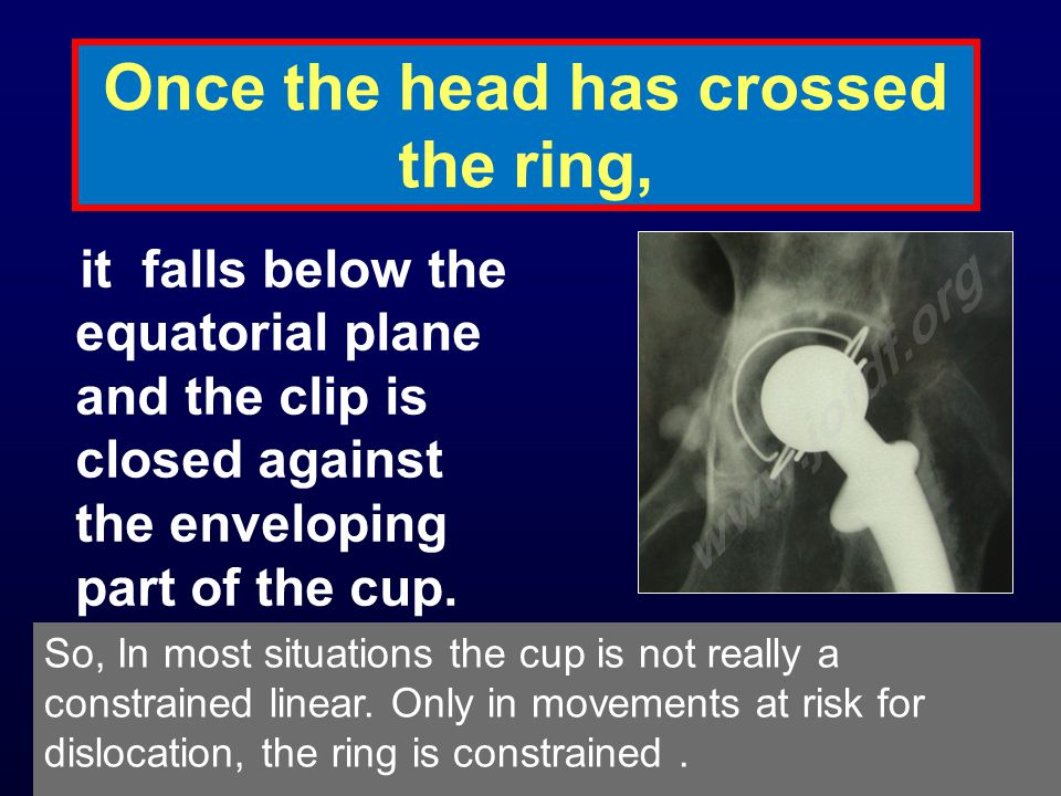 Once the head has crossed the ring, it falls below the equatorial plane and the clip is closed against the enveloping part of the cup.