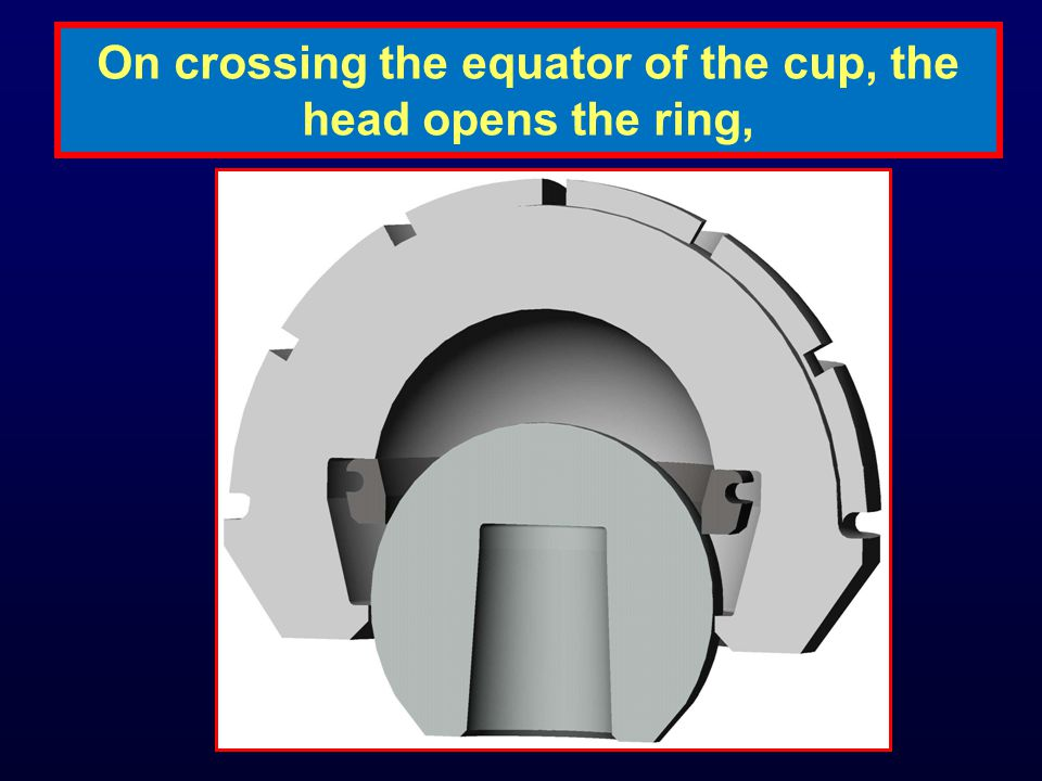 On crossing the equator of the cup, the head opens the ring,